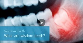 wisdom teeth solution video by Semiahmoo Dental in South Surrey