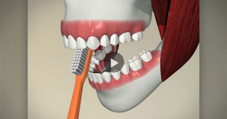 How to prevent your teeth video by Semiahmoo Dental in South Surrey