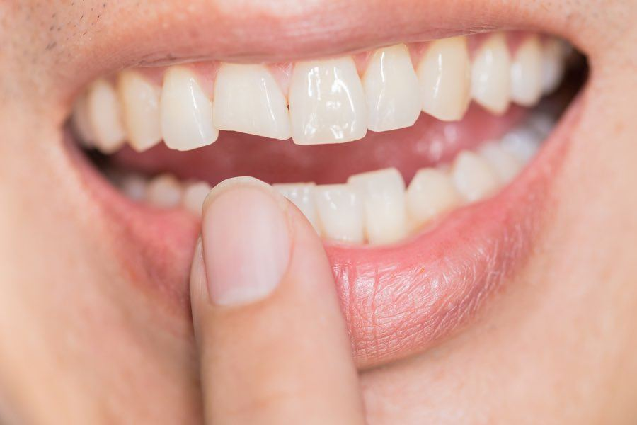 knock-out teeth photo
